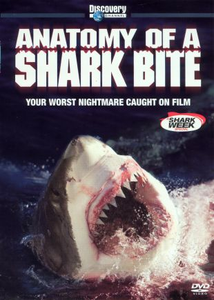 Anatomy of A... : Shark Bite