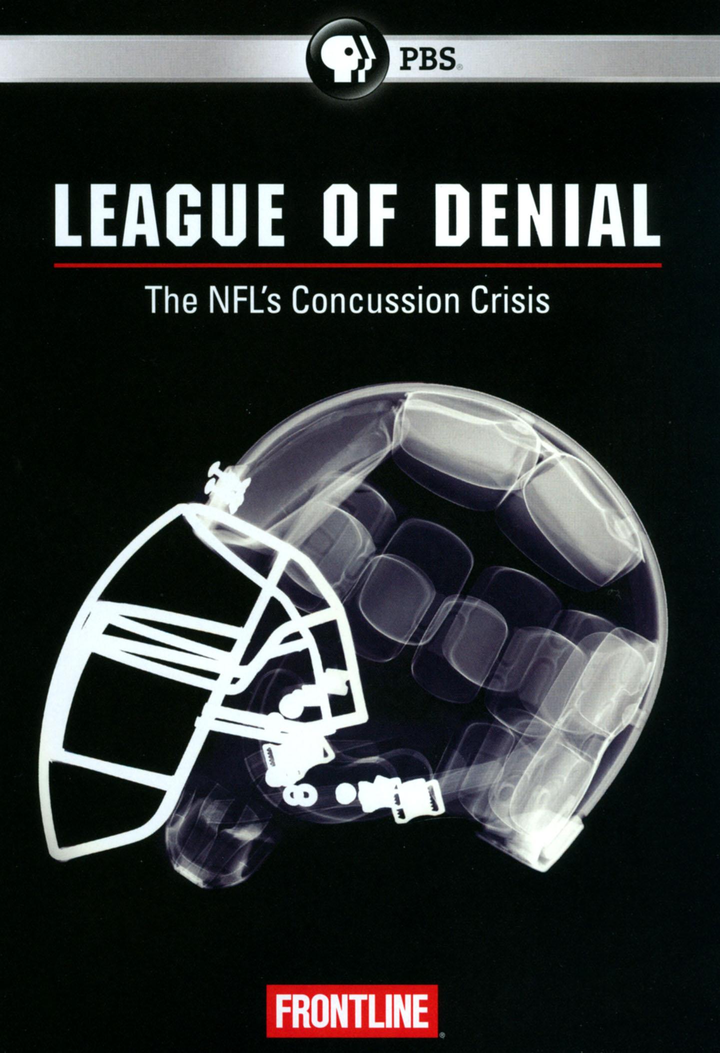 Frontline: League of Denial - The NFL's Concussion Crisis