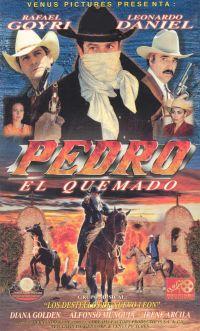 Pedro el Quemado