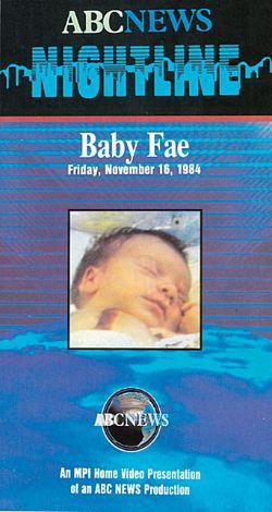 ABC News Nightline: Baby Fae