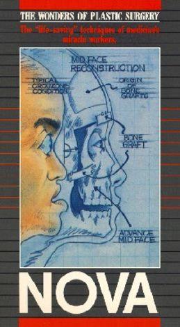 NOVA : A Normal Face: The Wonders of Plastic Surgery