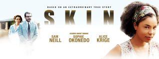 Skin [TV Series]