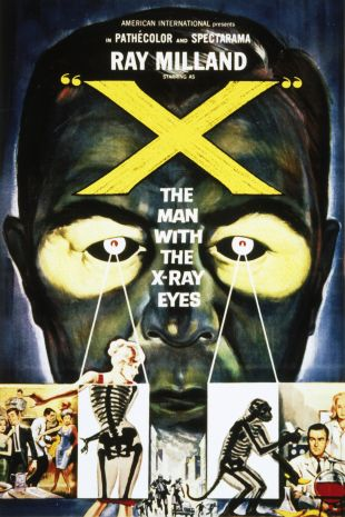 'X'---The Man With the X-Ray Eyes