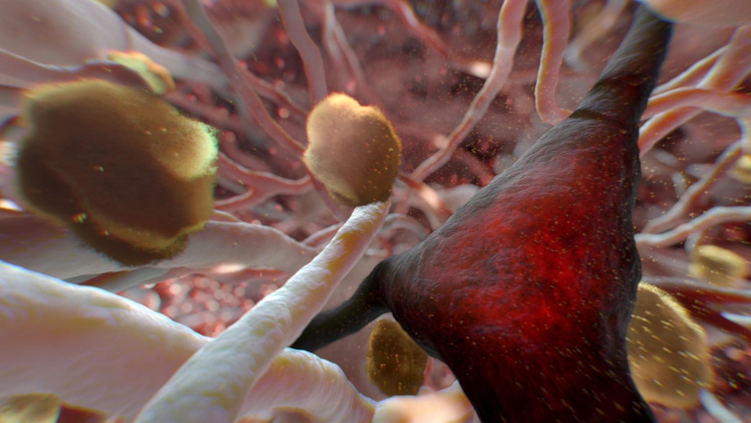 NOVA: Can Alzheimer's Be Stopped?